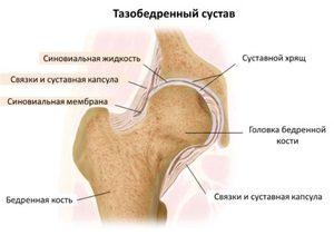 mint a csípőízület fájdalmainak kezelésére)