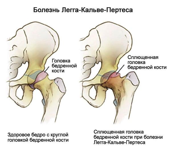 csípőízület trochanteritis