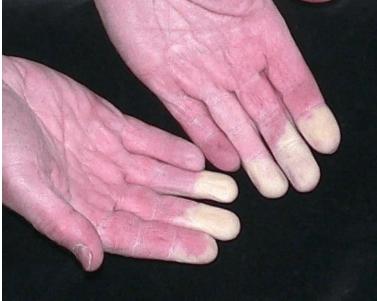 ozokerit, könyökízület artrózisával)