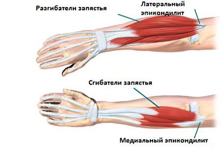 a könyökízület epicondylitisének kezelése a térdkezelő fórum deformáló artrózisa