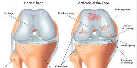 a térdízületi fájdalom kezelésének felírása hatékony csontritkulásos kenőcsök
