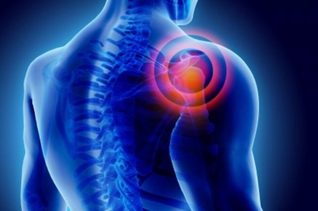 hogyan lehet eltávolítani a fájdalmat a vállízületekben