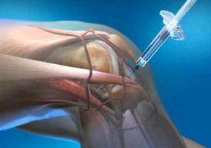 artrózis kezelése és gyógyszeres kezelés)