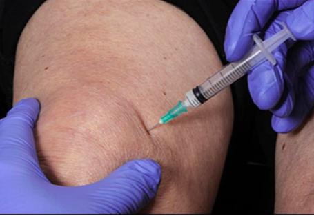a reumatológus az artrózist kezeli