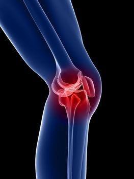 a térdízület patellofemoralis artrózisa)