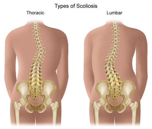 hogyan kell kezelni a vállízület előrehaladott artrózisát