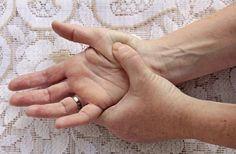 ujj deformáció és ízületi fájdalom