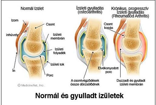 térdízületek betegségei és ízületi gyulladásuk kezelése izom- és ízületi fájdalmak mi ez