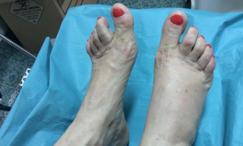 a lábujjak ízületének krémje)