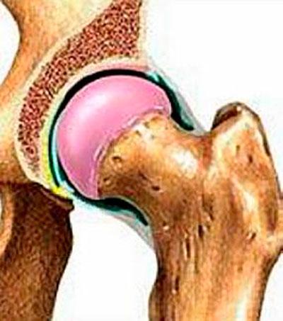aertális ízületi fájdalmak