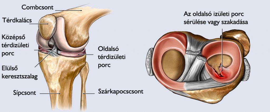 a térdízület belső kezelésének sprainje)