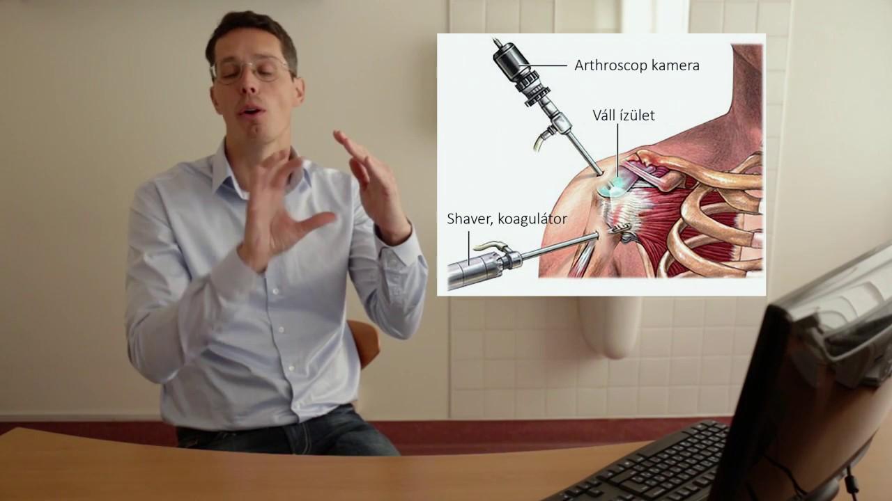 vállízületi rheumatoid arthritis tünetei csukló fájdalom a kézben
