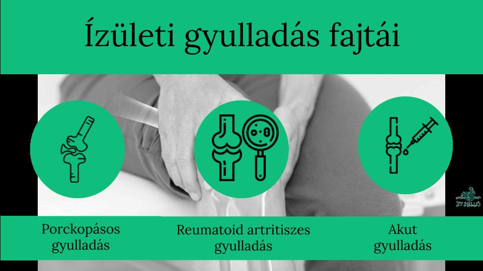 hogyan lehet megelőzni az ízületi gyulladást