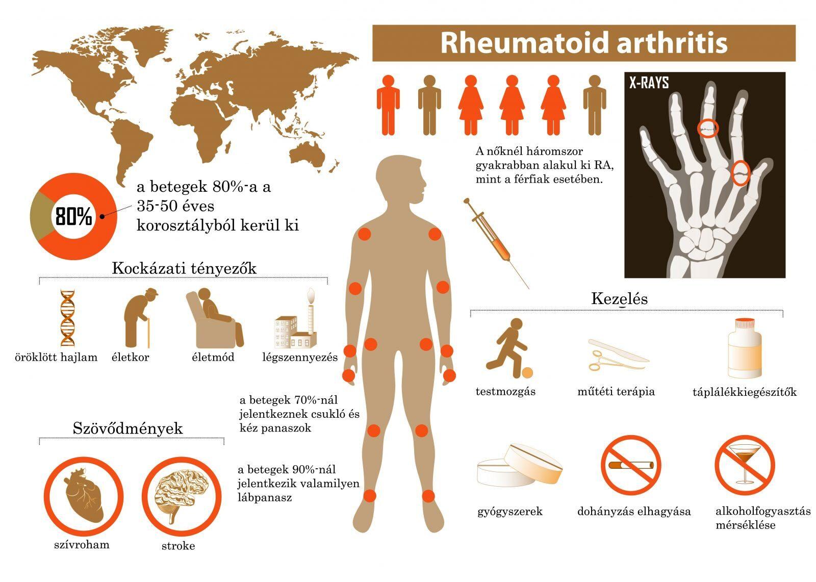 csukló rheumatoid arthritis tünetei)