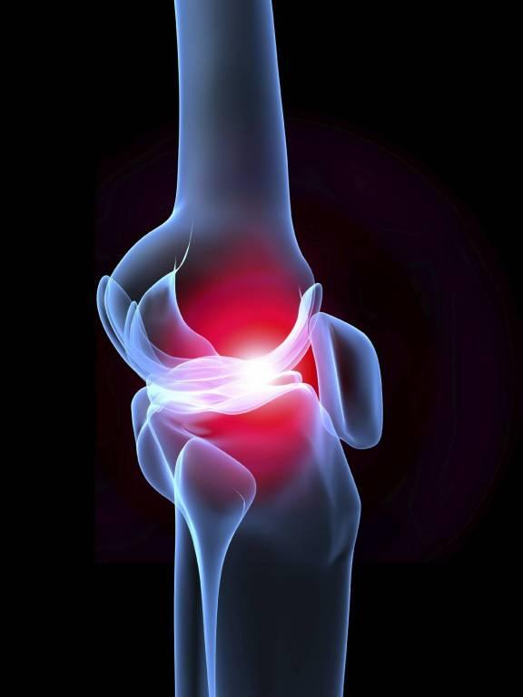 Melyek az ízületi fájdalom okai és tünetei? | Harmónia Centrum Blog