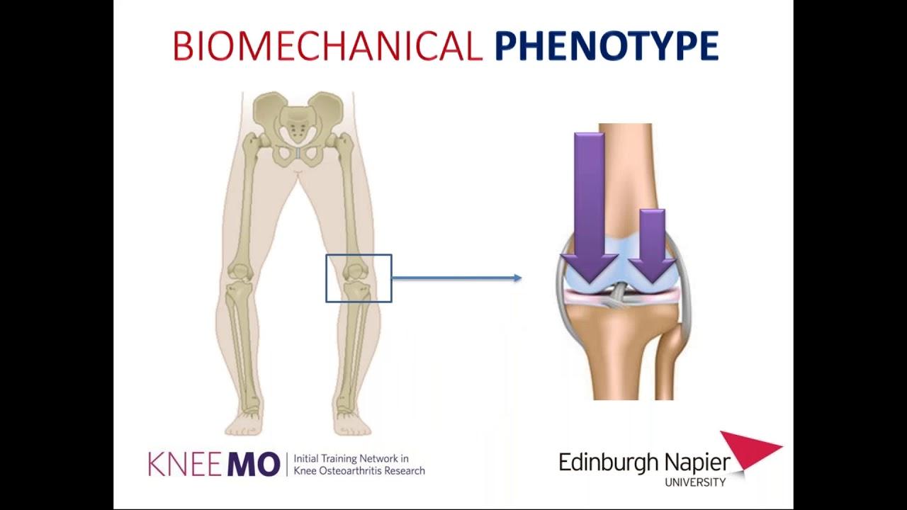 Tünetek és kezelés a deformáció térd Osteoarthritis Térd osteoarthritis deformációja