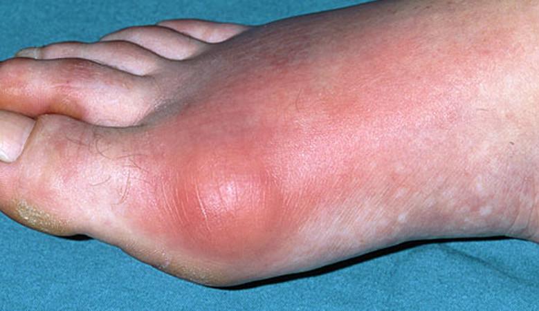 ujjízület gyulladás sérülés után