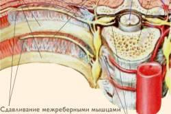 nyaki osteochondrozis gyógyszereinek komplexe)