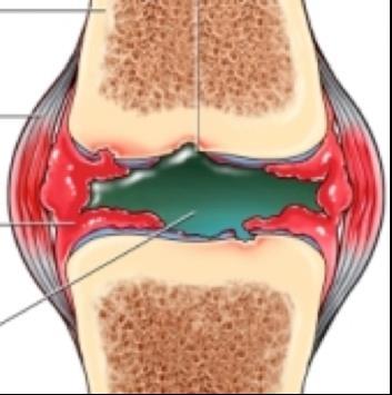 folyadék a térdízület bursitis kezelésében