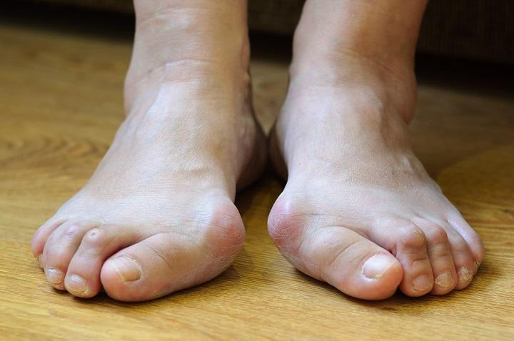 a lábfej kis lábujjának ízületi gyulladása