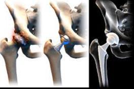 milyen tünetek vannak a csípőízület artrózisában