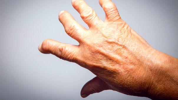lehetséges az artritisz kezelésére