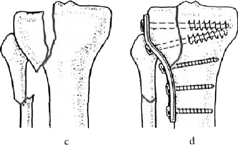 a térdízület kezelésének intraartikuláris törése)