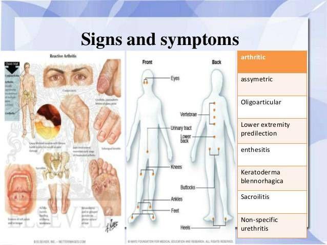 ízületi fájdalom kezelése ureaplasmával)