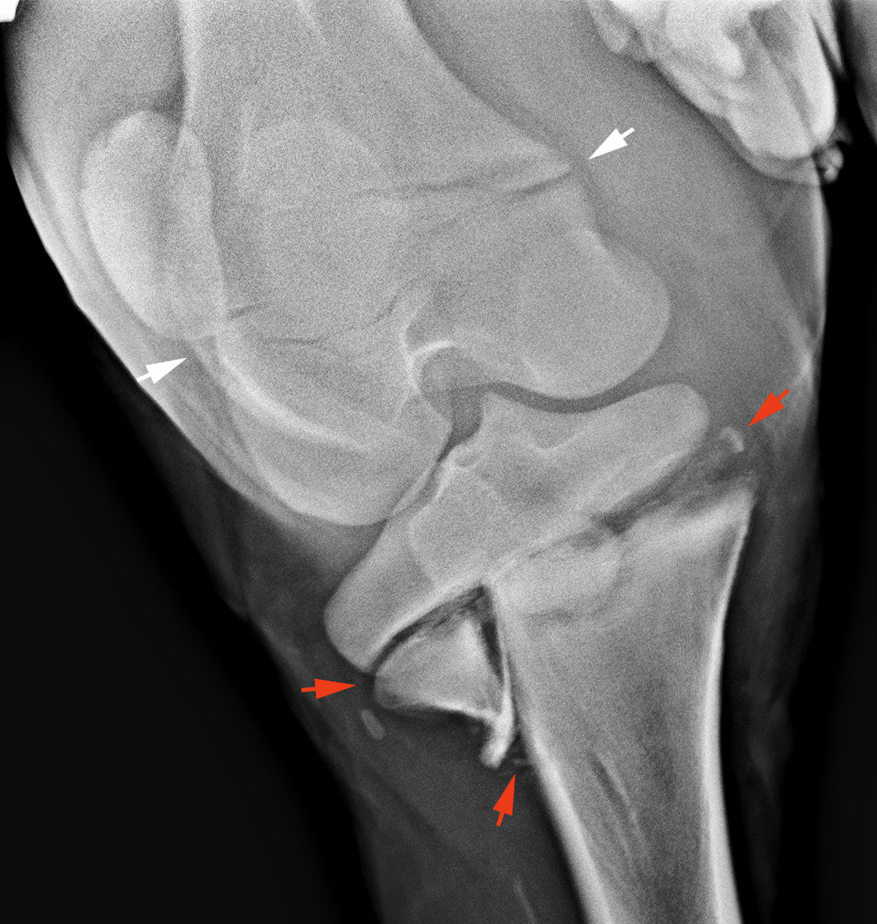Csonttörés gyógyulás serkentése mágnesterápia segítségével