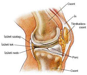 a térd artrózisával jár