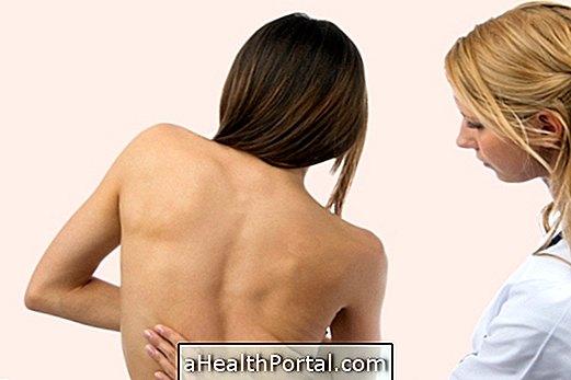 csípő skoliozis kezelés