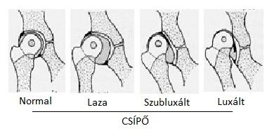 ízületi fájdalom csípő subluxáció)