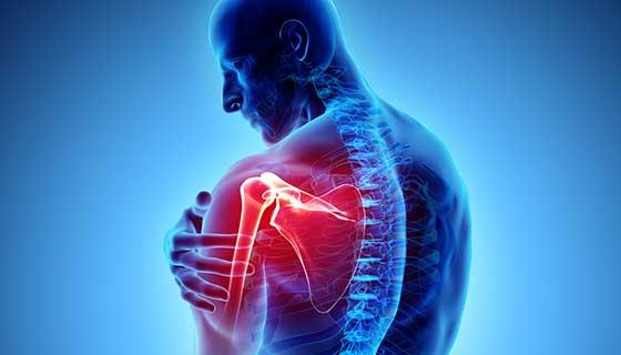 ízületi brachialis artrosis