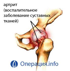 ízületi fájdalom és endoprotezis
