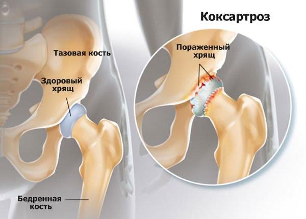 1. fokú csípőízület deformáló artrózisának kezelése)