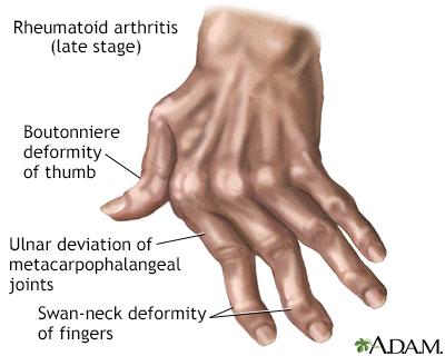 Rheumatoid arthritis képi képek FRIDA, AVAGY A FÁJDALOM DOMESZTIKÁLÁSA