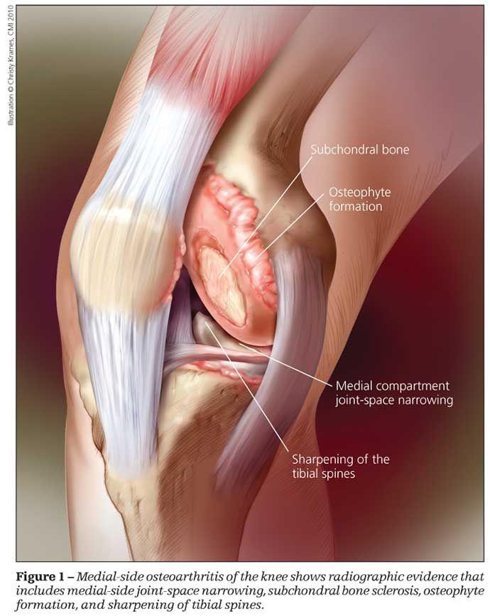 mi az osteoarthritis)