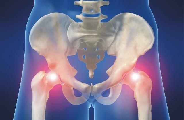 kiütés az artrózis kezelésében ízületi kezelés tskhaltubo georgiában