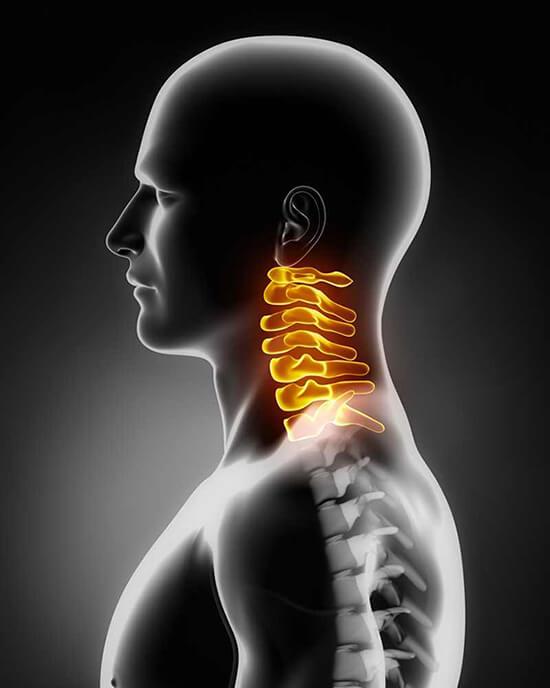 nyaki fájdalom
