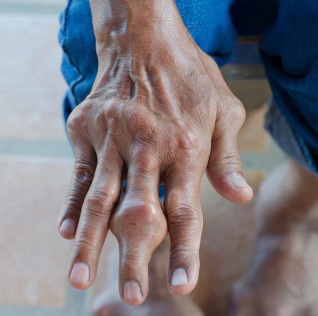 a láb kisujja ízületének gyulladása