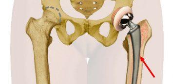 csípőízület nem műtéti kezelése)