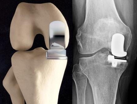 a térdízületi fájdalom kezelésének felírása ízületi fájdalom és urticaria