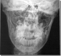a térdízület ízületi felületeinek szubchondrális szklerózisa)