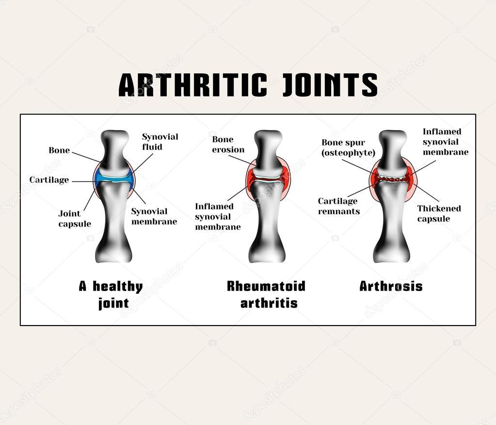 rheumatoid arthritis ízületek kivételek)