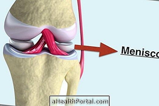 fájdalomcsillapítók a nyaki gerinc csontritkulásáért kenőcs vagy gél a térd artrózisához