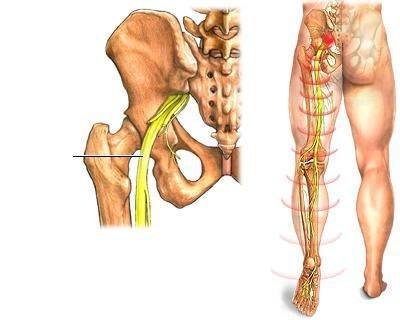 a csípőízület periartikuláris szövetének gyulladása