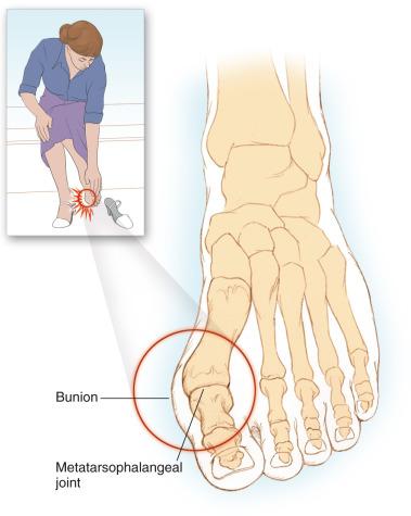 osteoarthritis first metatarsophalangeal joint icd 10)