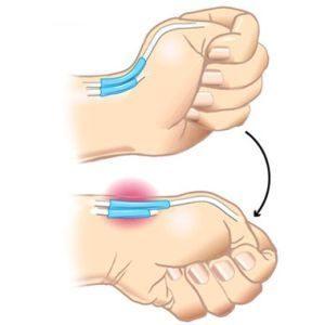 kenőcsök a kefe ízületeinek fájdalmához hogyan kell kezelni az ujjízületeket otthon
