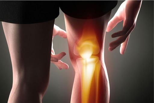 típusú osteoarthritis)