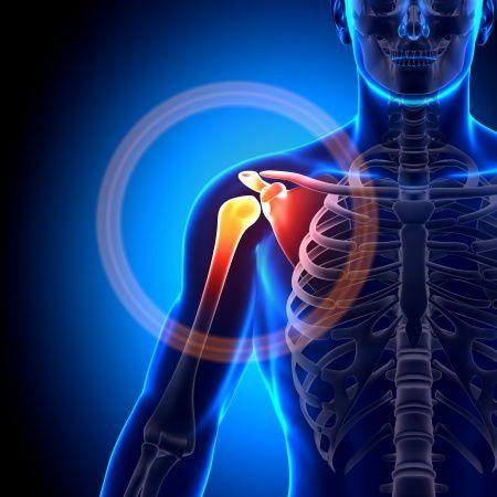 duzzanat a vállízület osteoarthrosisával